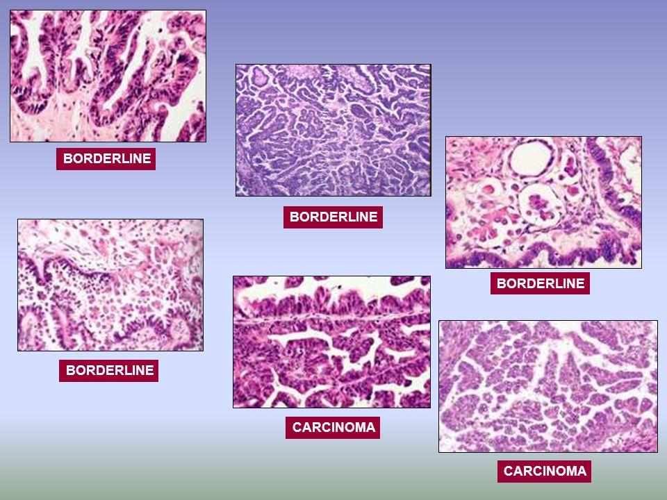 Implantes Peritoneales 15-40% TBMP con implantes peritoneales o afectación de ganglios retroperitoneales: –80-85% también son implantes borderline –10-15% son implantes invasivos