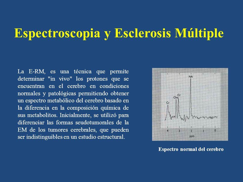 Espectroscopia y Esclerosis Múltiple La E-RM, es una técnica que permite determinar