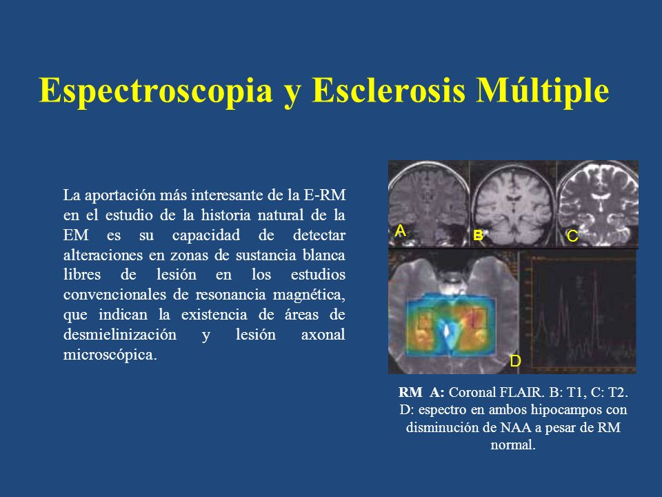 Espectroscopia y Esclerosis Múltiple Mientras que las lesiones en T2 se correlacionan mal con la clínica, la existencia de daño axonal, detectable en E-RM por una disminución del pico de N- acetil aspartato (NAA), se correlaciona con la severidad de la afectación clínica y con la evolución.