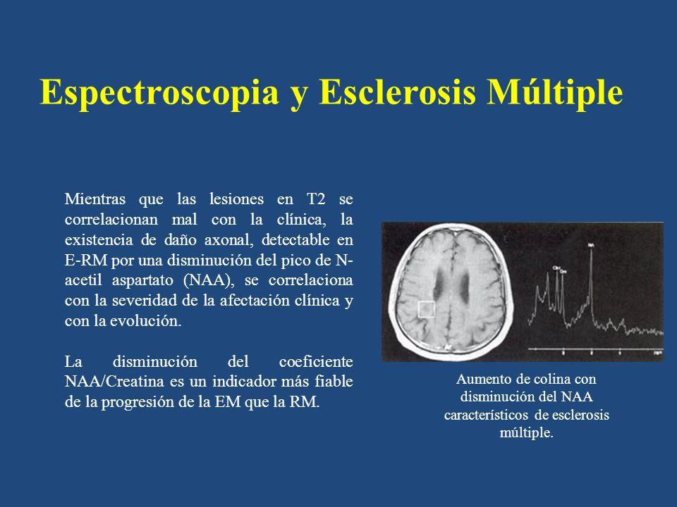 Espectroscopia y Esclerosis Múltiple Mientras que las lesiones en T2 se correlacionan mal con la clínica, la existencia de daño axonal, detectable en