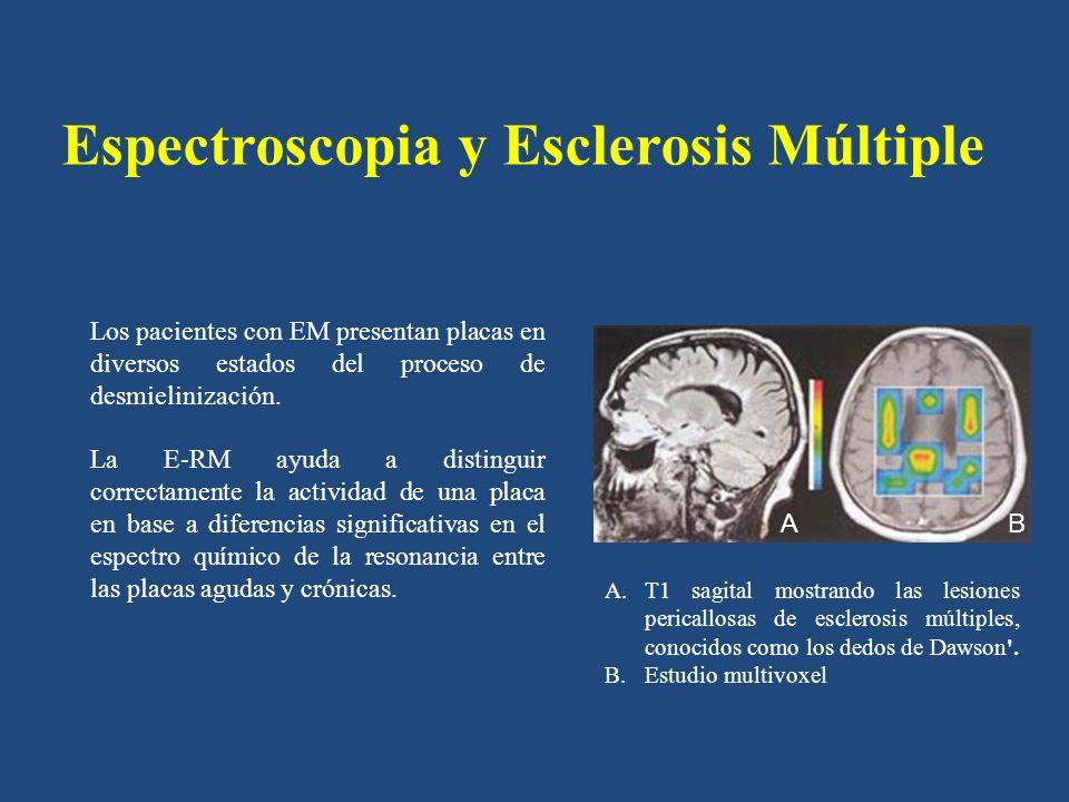 Espectroscopia y Esclerosis Múltiple En la placa aguda, se observa aumento del pico de colina (Cho), de los lípidos libres (LIP), mioinositol y el lactato (LAC), que se ha atribuido a la desmielinización, con destrucción de membranas celulares.