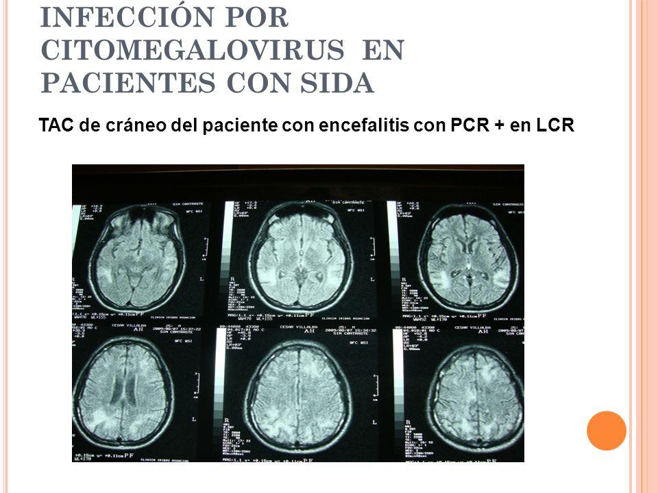 INFECCIÓN POR CITOMEGALOVIRUS EN PACIENTES CON SIDA TAC de cráneo del paciente con encefalitis con PCR + en LCR