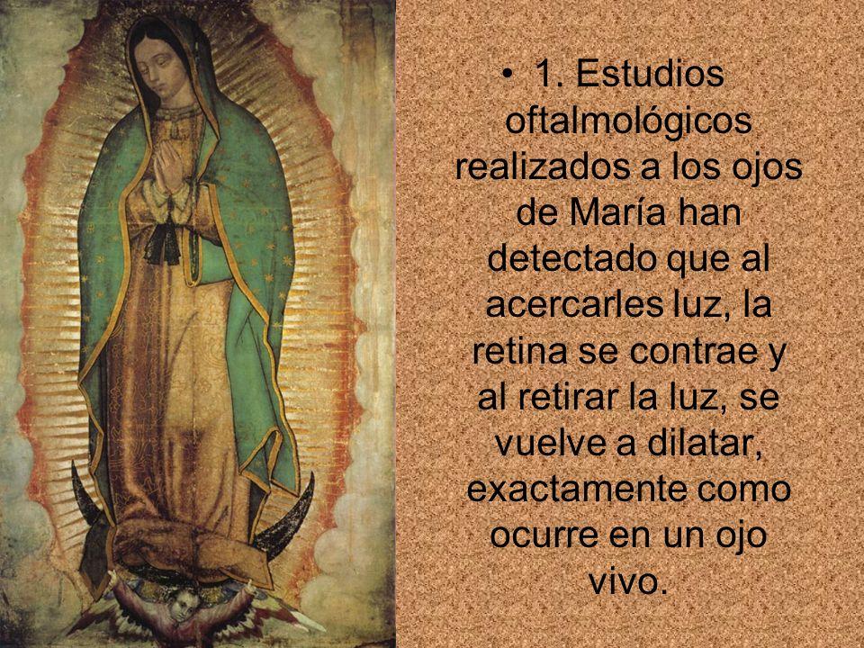 1. Estudios oftalmológicos realizados a los ojos de María han detectado que al acercarles luz, la retina se contrae y al retirar la luz, se vuelve a d
