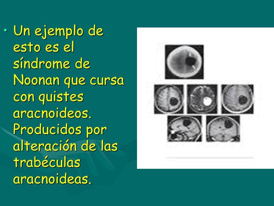Un ejemplo de esto es el síndrome de Noonan que cursa con quistes aracnoideos. Producidos por alteración de las trabéculas aracnoideas.Un ejemplo de e