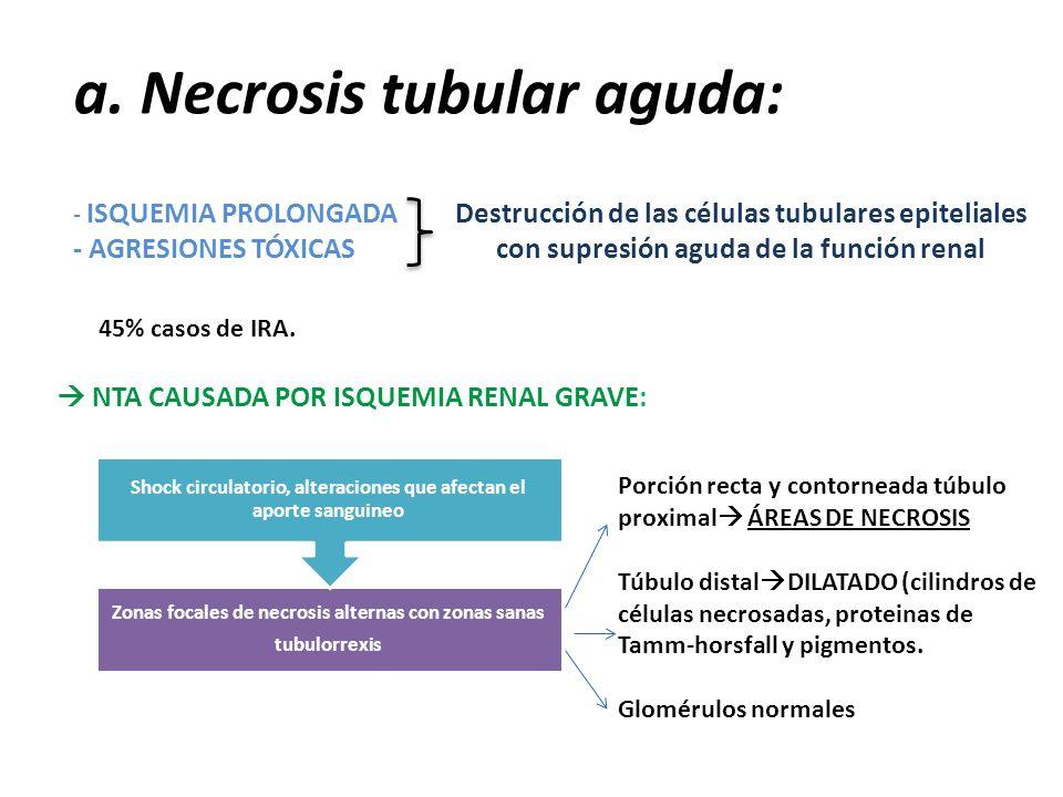 a. Necrosis tubular aguda: - ISQUEMIA PROLONGADA - AGRESIONES TÓXICAS Destrucción de las células tubulares epiteliales con supresión aguda de la funci