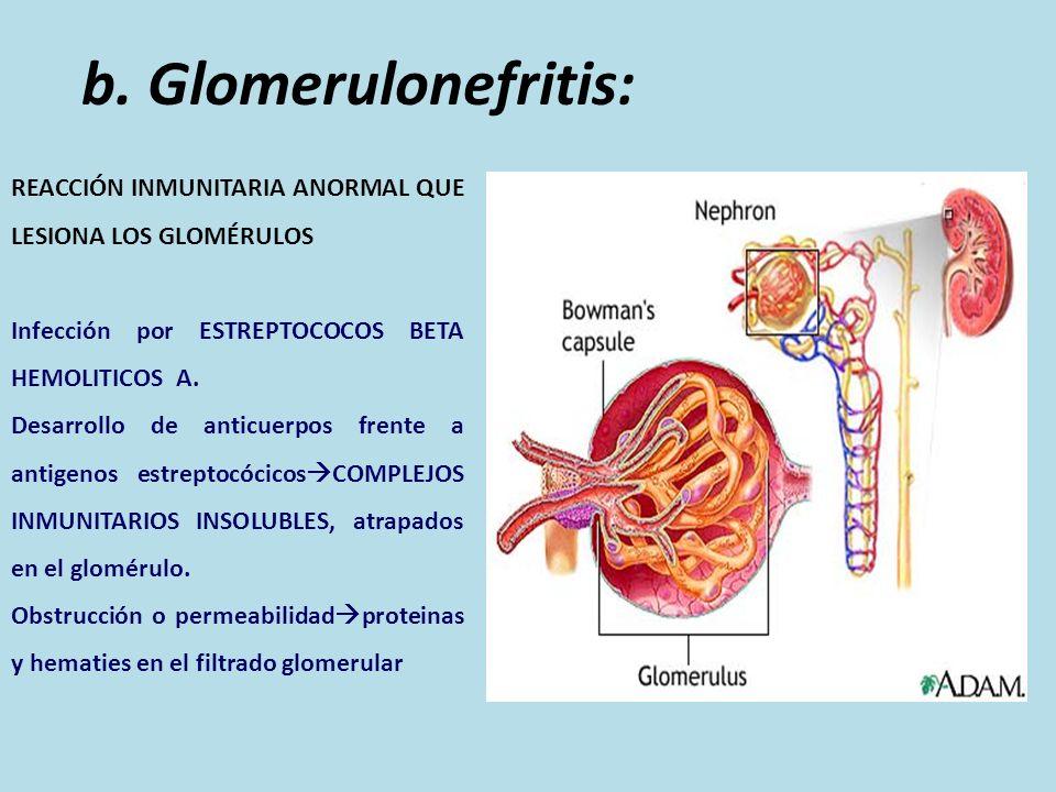 b. Glomerulonefritis: REACCIÓN INMUNITARIA ANORMAL QUE LESIONA LOS GLOMÉRULOS Infección por ESTREPTOCOCOS BETA HEMOLITICOS A. Desarrollo de anticuerpo
