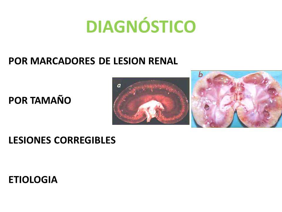 DIAGNÓSTICO POR MARCADORES DE LESION RENAL POR TAMAÑO LESIONES CORREGIBLES ETIOLOGIA