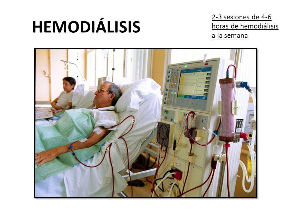 2-3 sesiones de 4-6 horas de hemodiálisis a la semana