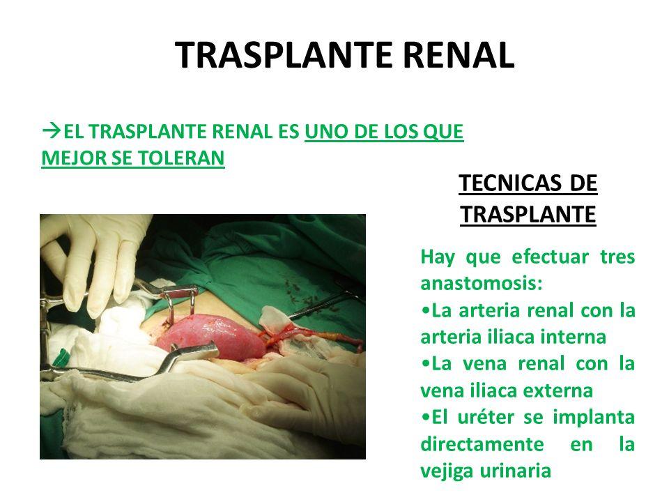 TRASPLANTE RENAL EL TRASPLANTE RENAL ES UNO DE LOS QUE MEJOR SE TOLERAN TECNICAS DE TRASPLANTE Hay que efectuar tres anastomosis: La arteria renal con