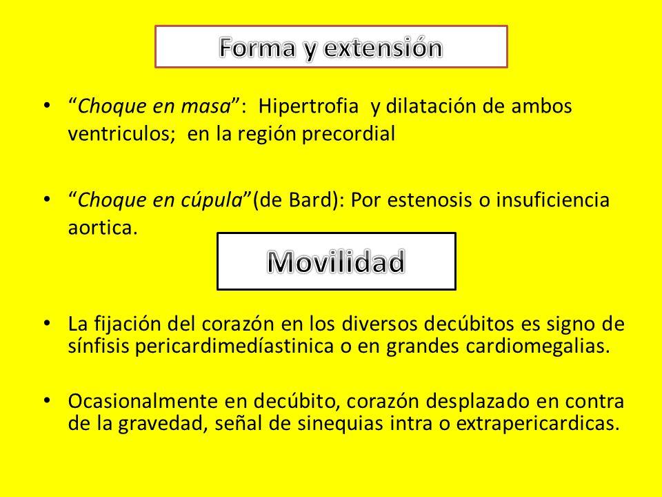 Choque en masa: Hipertrofia y dilatación de ambos ventriculos; en la región precordial Choque en cúpula(de Bard): Por estenosis o insuficiencia aortica.