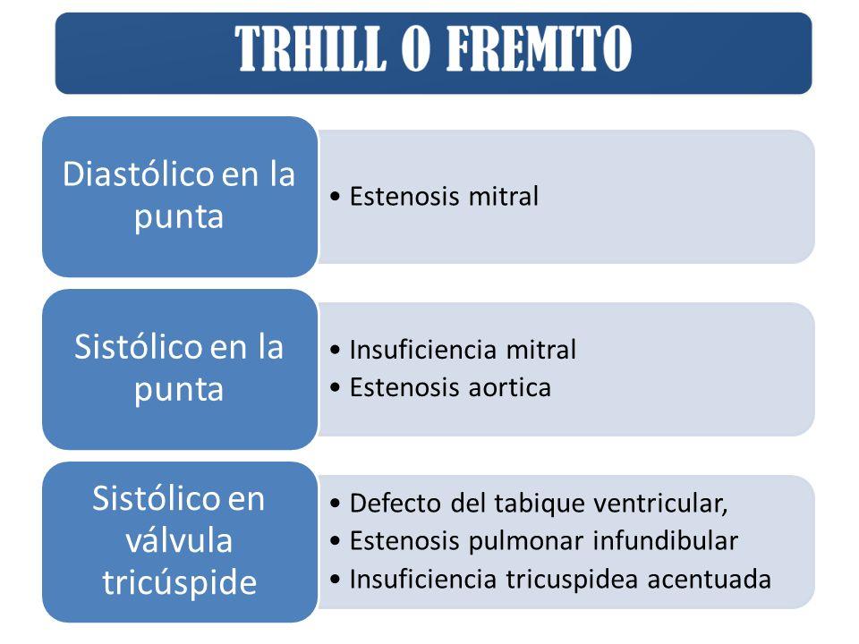 Estenosis mitral Diastólico en la punta Insuficiencia mitral Estenosis aortica Sistólico en la punta Defecto del tabique ventricular, Estenosis pulmonar infundibular Insuficiencia tricuspidea acentuada Sistólico en válvula tricúspide