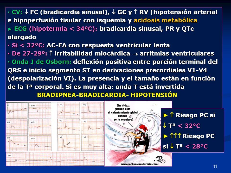 11 CV: FC (bradicardia sinusal), GC y RV (hipotensión arterial CV: FC (bradicardia sinusal), GC y RV (hipotensión arterial e hipoperfusión tisular con