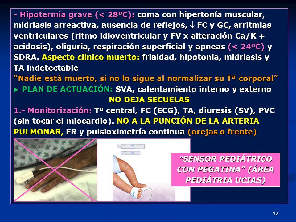 12 - Hipotermia grave (< 28ºC): coma con hipertonía muscular, midriasis arreactiva, ausencia de reflejos, FC y GC, arritmias ventriculares (ritmo idio