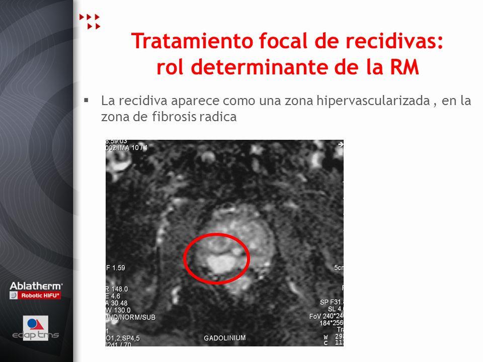 Tratamiento focal de recidivas: rol determinante de la RM La recidiva aparece como una zona hipervascularizada, en la zona de fibrosis radica