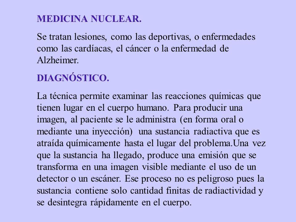 TRATAMIENTO Consiste en matar células enfermas con una elevada dosis de una sustancia radioactiva.