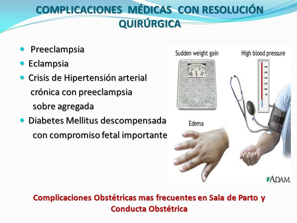 Complicaciones Obstétricas mas frecuentes en Sala de Parto y Conducta Obstétrica HEMORRÁGIAS POSTPARTO Es una de las primeras causas de morbimortalidad materna en todo el mundo MANEJO EFICAZ: Relacionado con la pérdida sanguínea normal del parto Relacionado con la pérdida sanguínea normal del parto Repuesta fisiológica a la hemorragia Repuesta fisiológica a la hemorragia Etiología de la hemorragia Etiología de la hemorragia PÉRDIDAS SANGUÍNEAS NORMAL 500 cc Parto Vaginal 500 cc Parto Vaginal 1000 cc Cesárea 1500 cc Histerectomía INTERVENCIÓN TERAPEUTICA APROPIADA