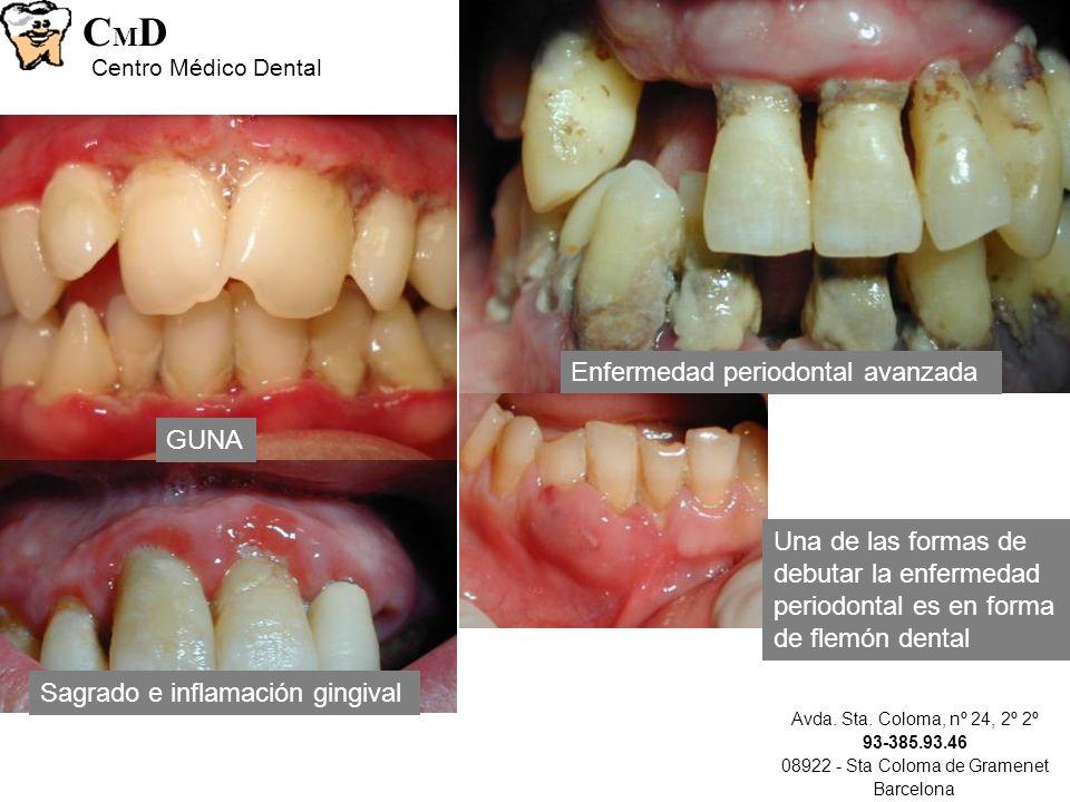 Avda. Sta. Coloma, nº 24, 2º 2º 93-385.93.46 08922 - Sta Coloma de Gramenet Barcelona CMDCMD Centro Médico Dental Sagrado e inflamación gingival GUNA