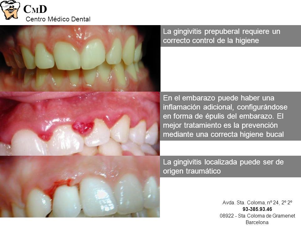 Avda. Sta. Coloma, nº 24, 2º 2º 93-385.93.46 08922 - Sta Coloma de Gramenet Barcelona CMDCMD Centro Médico Dental La gingivitis localizada puede ser d