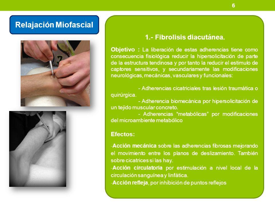 6 Relajación Miofascial 1.- Fibrolisis diacutánea. Objetivo : La liberación de estas adherencias tiene como consecuencia fisiológica reducir la hipers