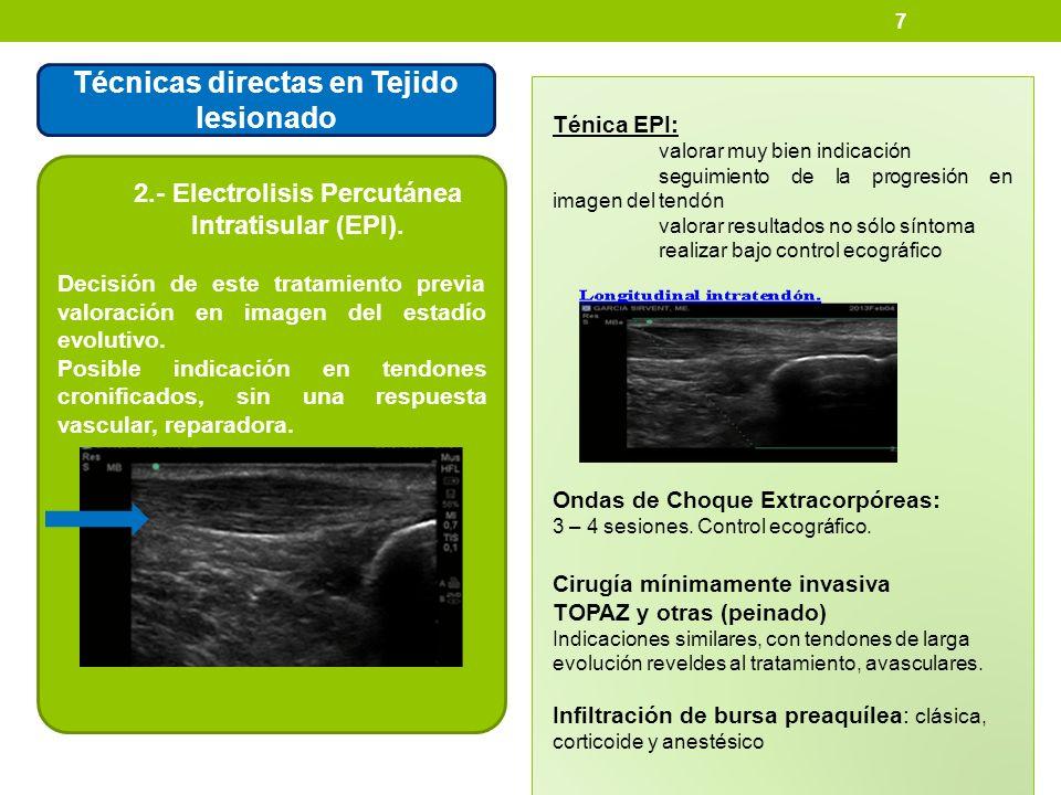 7 Técnicas directas en Tejido lesionado 2.- Electrolisis Percutánea Intratisular (EPI). Decisión de este tratamiento previa valoración en imagen del e
