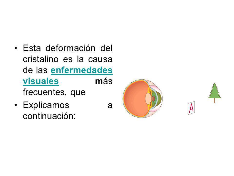 Esta deformación del cristalino es la causa de las enfermedades visuales más frecuentes, queenfermedades visuales Explicamos a continuación:
