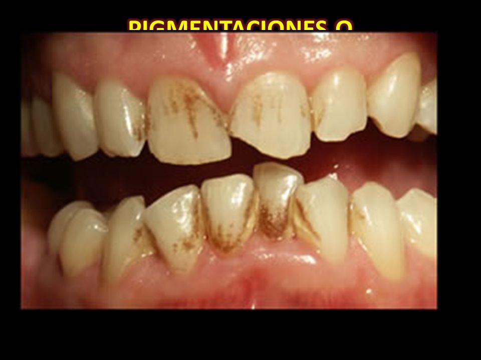 Las pigmentaciones ocurren durante o después de la formación del esmalte y la dentina, apareciendo algunas luego de la erupción dental y otras son el