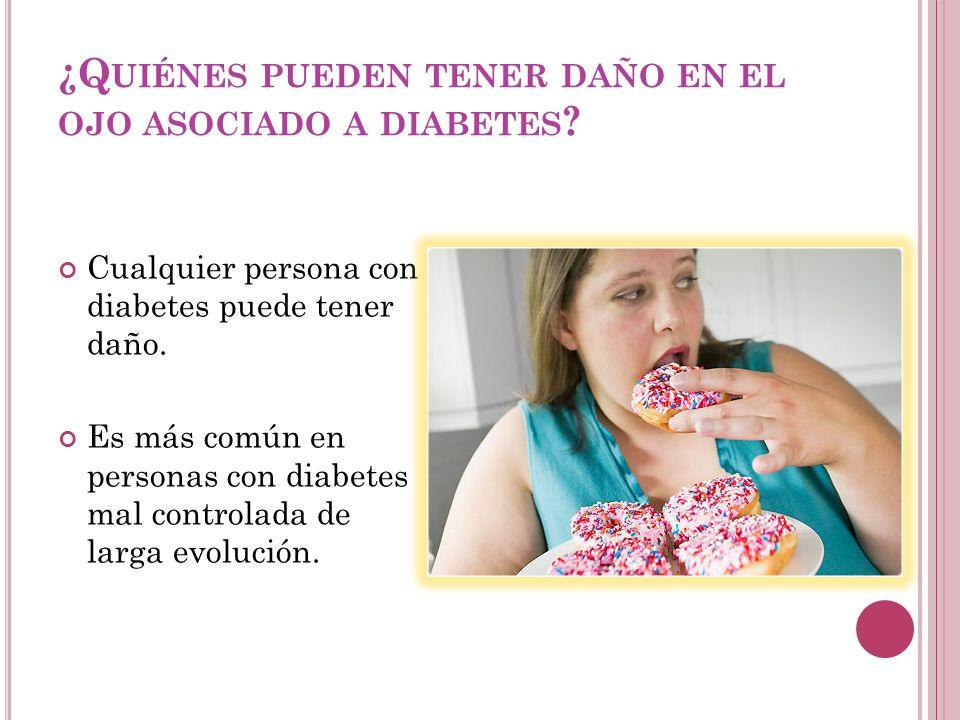 ¿Q UIÉNES PUEDEN TENER DAÑO EN EL OJO ASOCIADO A DIABETES ? Cualquier persona con diabetes puede tener daño. Es más común en personas con diabetes mal
