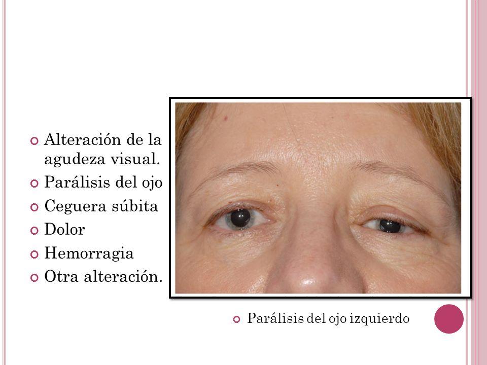 Alteración de la agudeza visual. Parálisis del ojo Ceguera súbita Dolor Hemorragia Otra alteración. Parálisis del ojo izquierdo