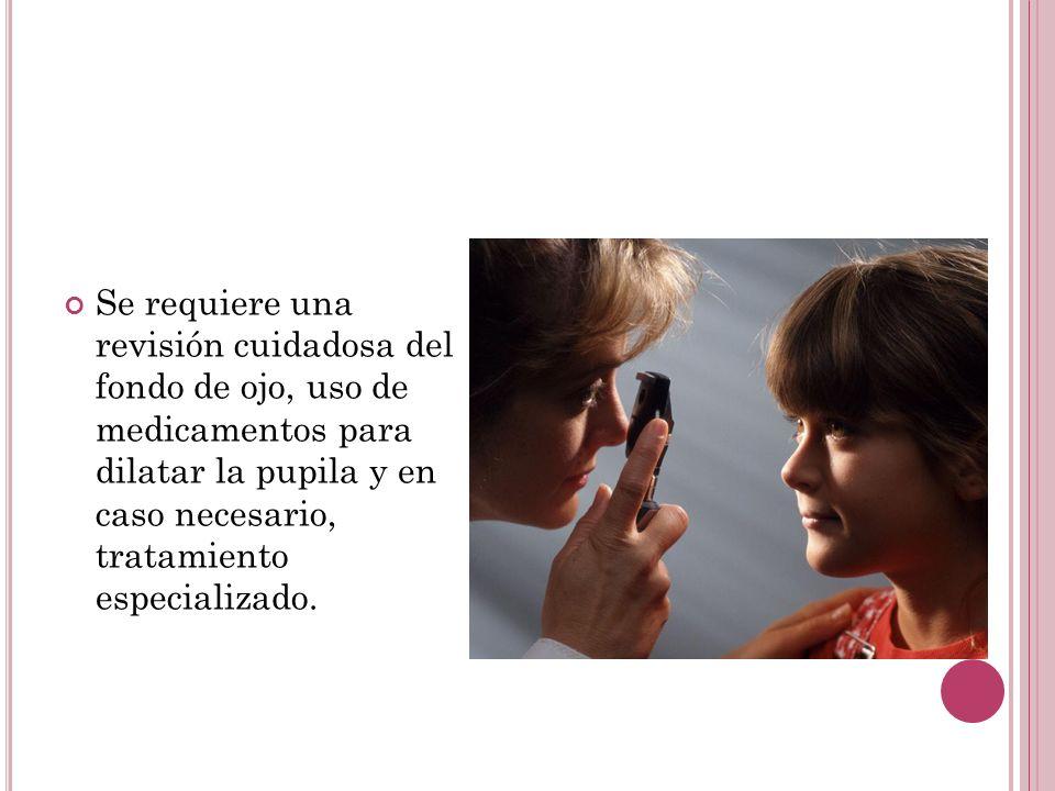 Se requiere una revisión cuidadosa del fondo de ojo, uso de medicamentos para dilatar la pupila y en caso necesario, tratamiento especializado.