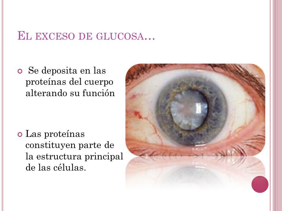 E L EXCESO DE GLUCOSA … Se deposita en las proteínas del cuerpo alterando su función Las proteínas constituyen parte de la estructura principal de las