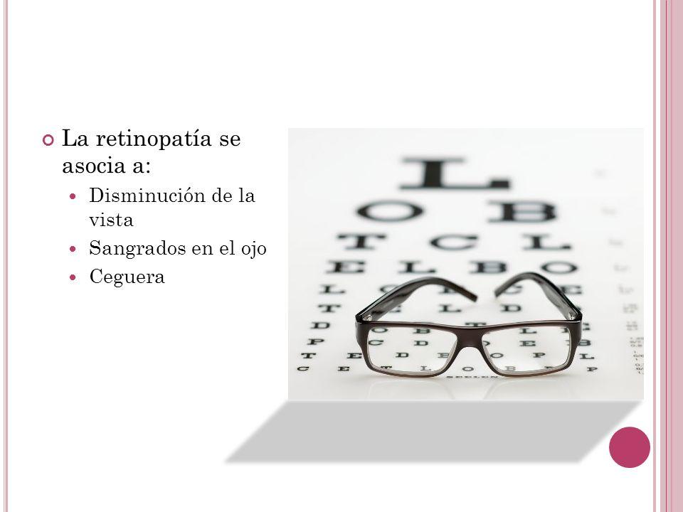 La retinopatía se asocia a: Disminución de la vista Sangrados en el ojo Ceguera