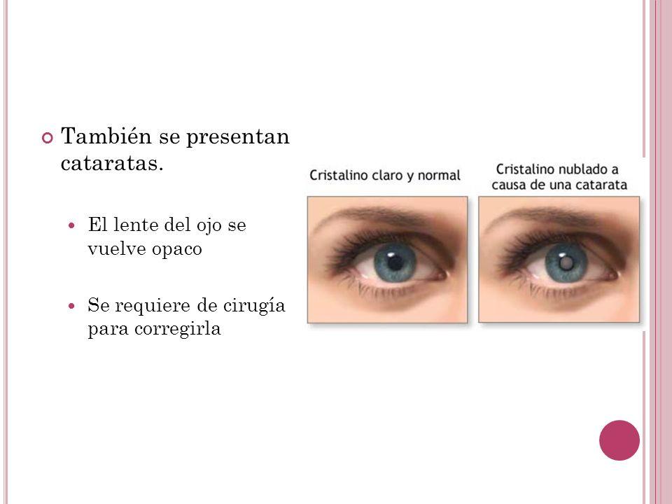También se presentan cataratas. El lente del ojo se vuelve opaco Se requiere de cirugía para corregirla