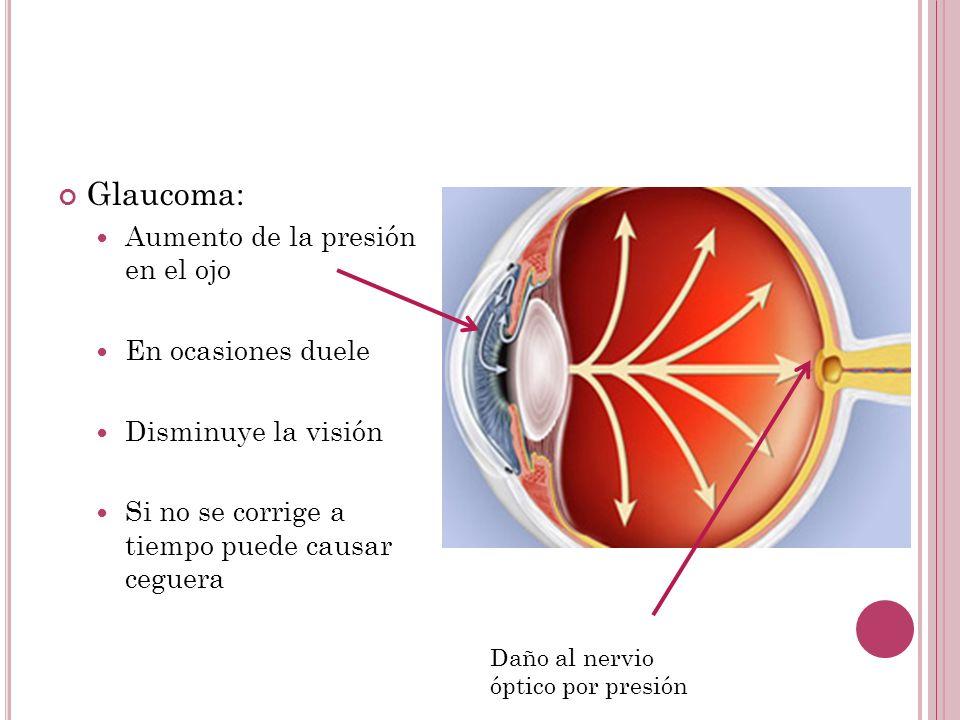Glaucoma: Aumento de la presión en el ojo En ocasiones duele Disminuye la visión Si no se corrige a tiempo puede causar ceguera Daño al nervio óptico