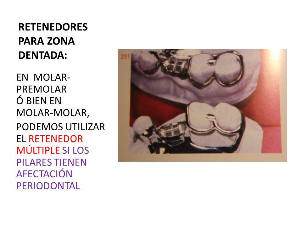 RETENEDORES PARA ZONA DENTADA: EN MOLAR- PREMOLAR Ó BIEN EN MOLAR-MOLAR, PODEMOS UTILIZAR EL RETENEDOR MÚLTIPLE SI LOS PILARES TIENEN AFECTACIÓN PERIO