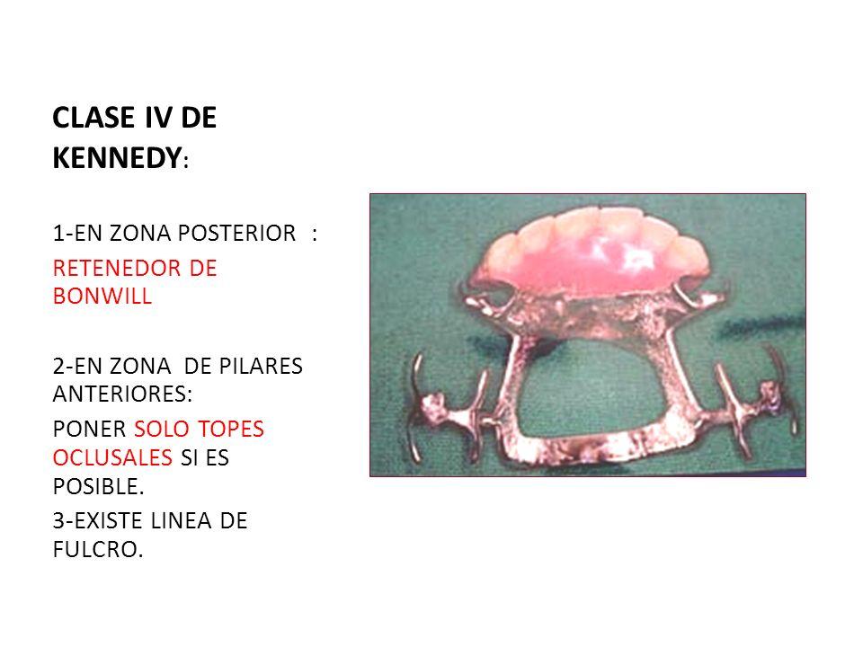 CLASE IV DE KENNEDY : 1-EN ZONA POSTERIOR : RETENEDOR DE BONWILL 2-EN ZONA DE PILARES ANTERIORES: PONER SOLO TOPES OCLUSALES SI ES POSIBLE. 3-EXISTE L