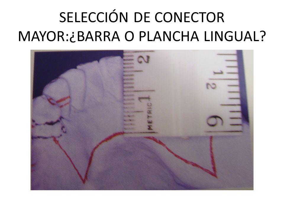 SELECCIÓN DE CONECTOR MAYOR:¿BARRA O PLANCHA LINGUAL?