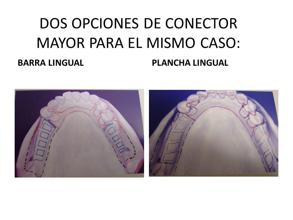 DOS OPCIONES DE CONECTOR MAYOR PARA EL MISMO CASO: BARRA LINGUALPLANCHA LINGUAL