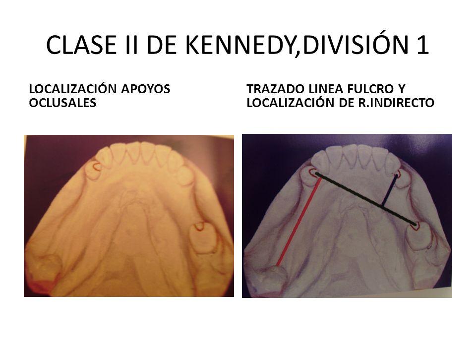 CLASE II DE KENNEDY,DIVISIÓN 1 LOCALIZACIÓN APOYOS OCLUSALES TRAZADO LINEA FULCRO Y LOCALIZACIÓN DE R.INDIRECTO