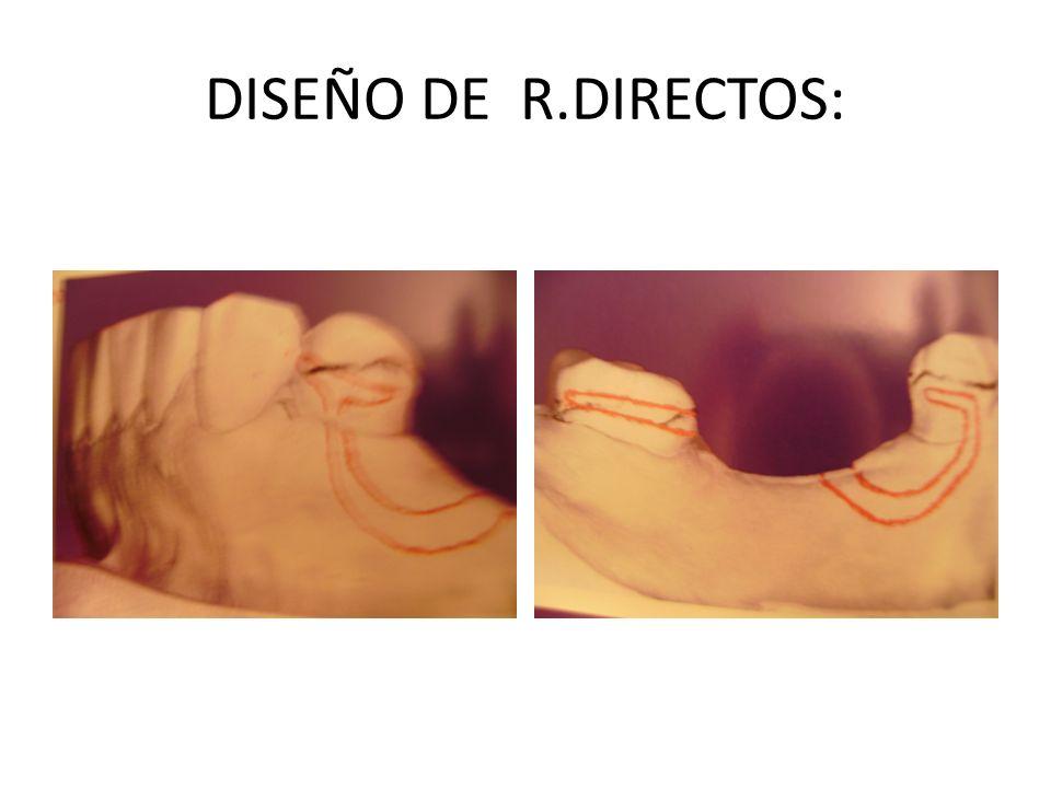 DISEÑO DE R.DIRECTOS: