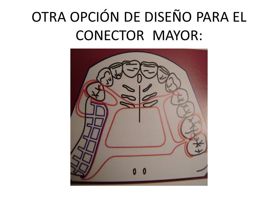 OTRA OPCIÓN DE DISEÑO PARA EL CONECTOR MAYOR: