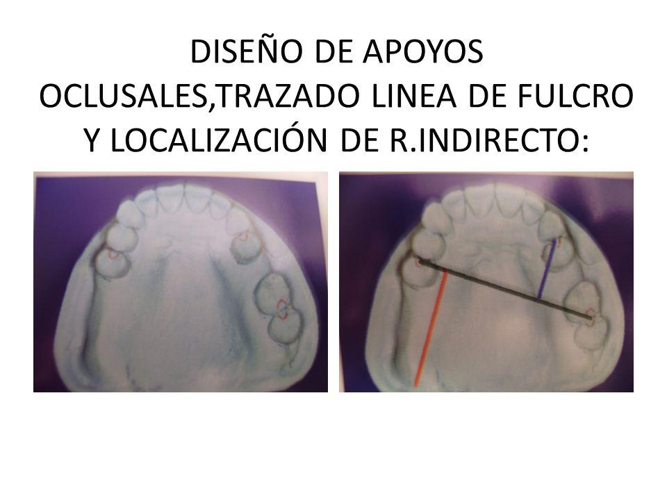 DISEÑO DE APOYOS OCLUSALES,TRAZADO LINEA DE FULCRO Y LOCALIZACIÓN DE R.INDIRECTO: