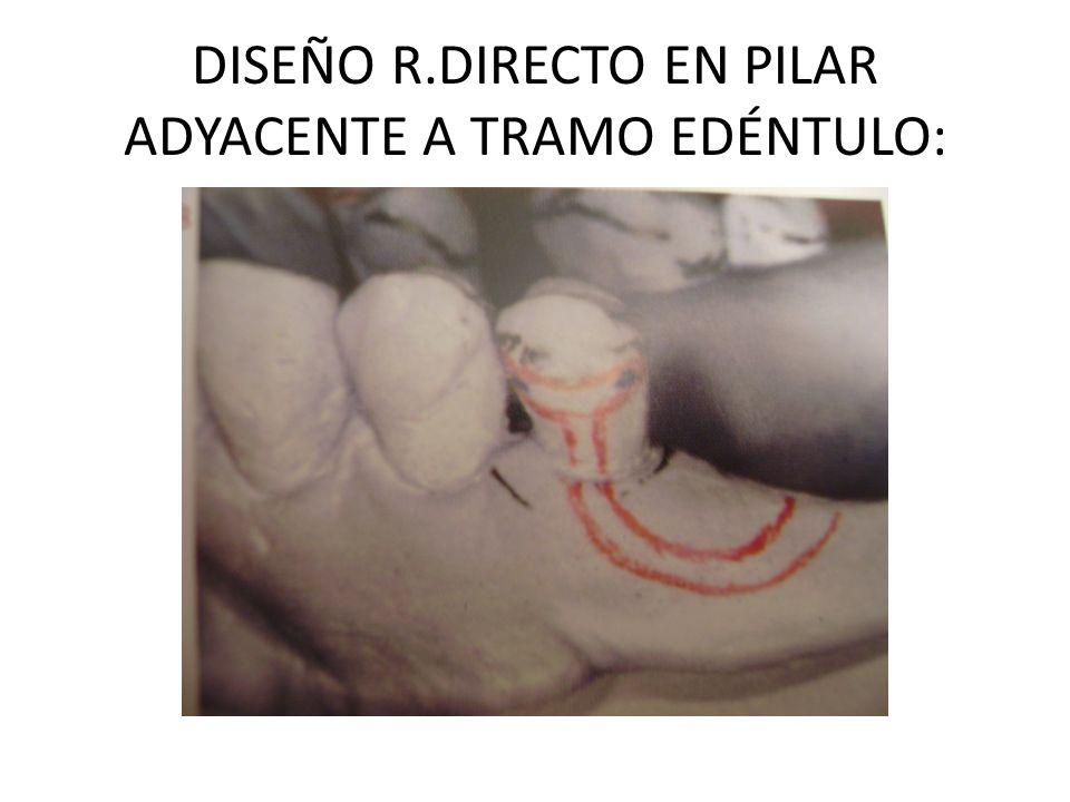 DISEÑO R.DIRECTO EN PILAR ADYACENTE A TRAMO EDÉNTULO: