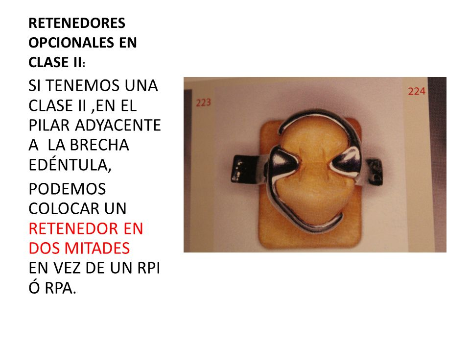 CLASE III DE KENNEDY: PILARES ANTERIOR Y POSTERIOR NO SON MUY BUENOS,POR TANTO SE RECOMIENDA: -RETENEDOR EN ANILLO PARA MOLARES Ó PREMOLARES -RETENEDOR DE ACCIÓN POSTERIOR PARA PREMOLARES -RETENEDOR DE BRAZO ÚNICO SI HAY 2 DIENTES CONTÍNUOS