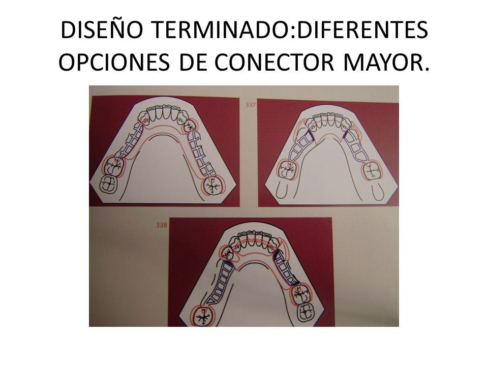 DISEÑO TERMINADO:DIFERENTES OPCIONES DE CONECTOR MAYOR.