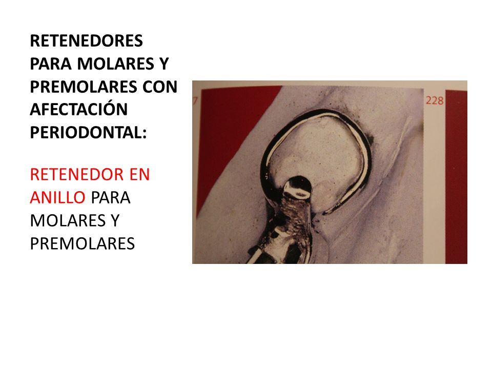 RETENEDORES PARA PREMOLARES CON AFECTACIÓN PERIODONTAL : RETENEDOR DE ACCIÓN POSTERIOR