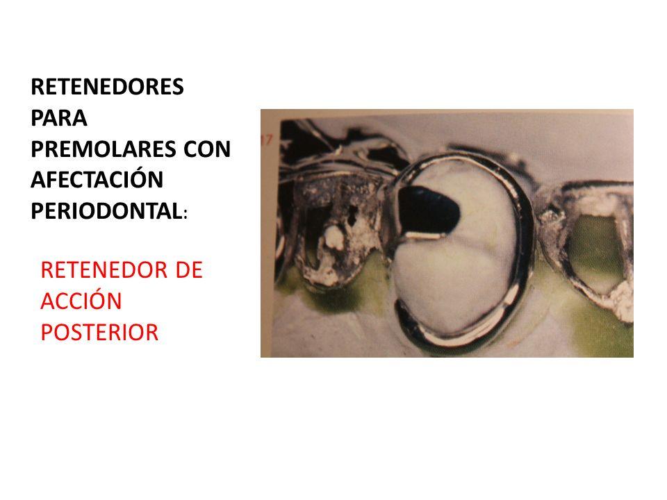 CLASE VI DE KENNEDY : TANTO EN PILAR ANTERIOR COMO POSTERIOR: RETENEDOR DE ACKERS, EXCEPTO SI PILAR ANTERIOR FUESE UN CANINO,EN ESE CASO SE PONDRIA UN ROACH EN Y