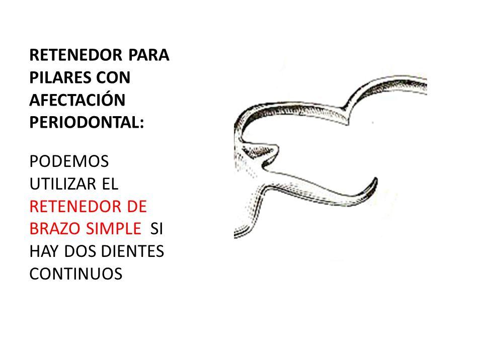 CLASE I DE KENNEDY: LINEA DE FULCRO SELECCIÓN DE PILAR PARA R.INDIRECTO
