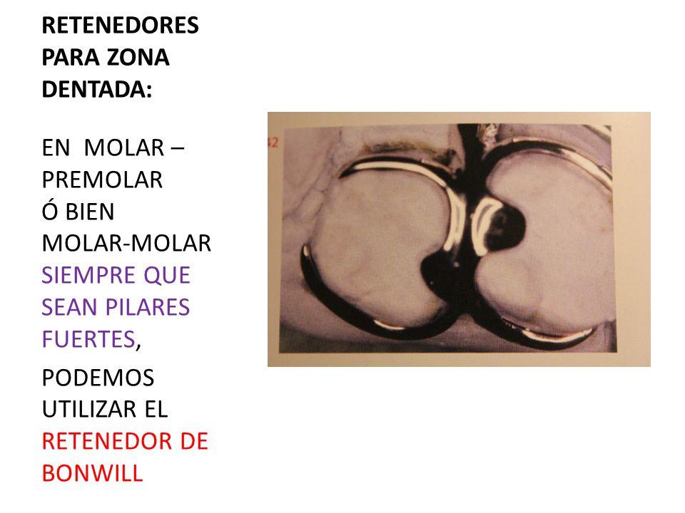 RETENEDORES PARA ZONA DENTADA: EN MOLAR – PREMOLAR Ó BIEN MOLAR-MOLAR SIEMPRE QUE SEAN PILARES FUERTES, PODEMOS UTILIZAR EL RETENEDOR DE BONWILL