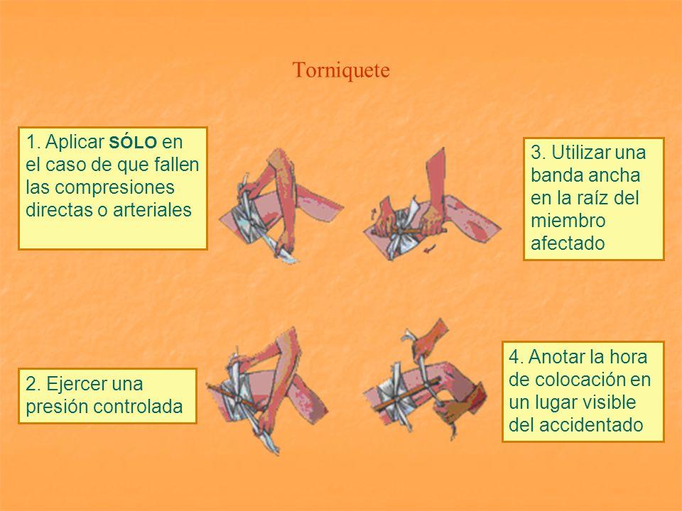 Torniquete 1. Aplicar SÓLO en el caso de que fallen las compresiones directas o arteriales 2. Ejercer una presión controlada 3. Utilizar una banda anc