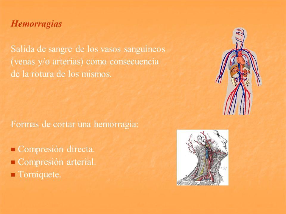 Hemorragias Salida de sangre de los vasos sanguíneos (venas y/o arterias) como consecuencia de la rotura de los mismos. Formas de cortar una hemorragi